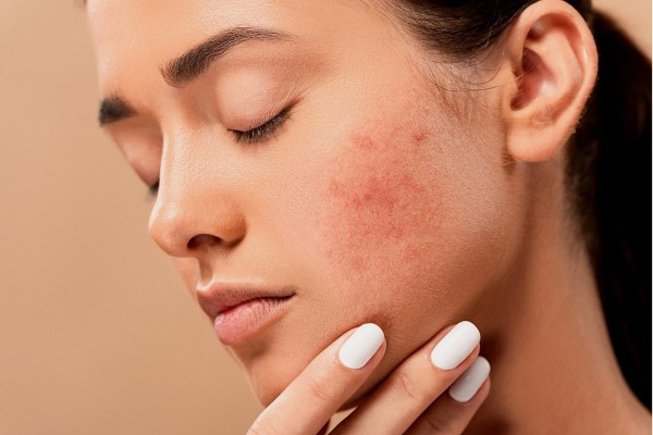 Chemical Exfoliation: The Difference Between AHAs and BHAs