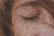red spots on skin, symptoms