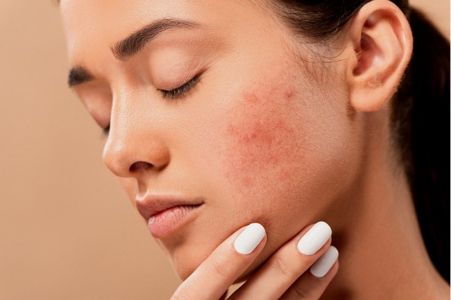 How To Get Rid Of Dark Marks From Acne Breakouts