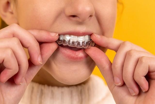 Invisalign: Ways to Get Straighter Teeth